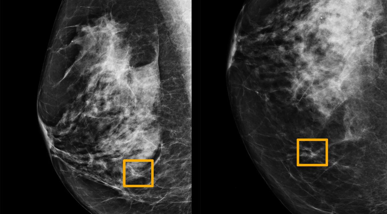 Kalahkan Dokter, AI Google Lebih Akurat dalam Mendeteksi Kanker Payudara
